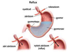 Gyomorégés és a savközömbösítők